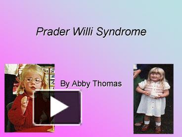 a description of prader willi syndrome Prader-willi syndrome (pws) is a rare genetic disorder which causes various  physical,  prader-willi syndrome prader-willi syndrome description prader- willi.