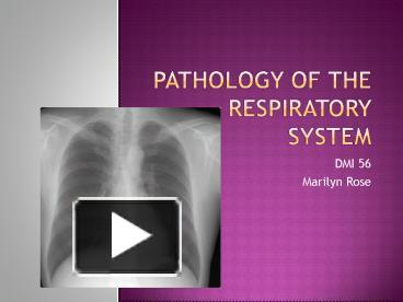 Respiratory problems diseases and disorders of the respiratory.