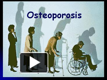 Ppt osteoporosis powerpoint presentation free to view id ppt osteoporosis powerpoint presentation free to view id 201164 yznjz toneelgroepblik Gallery