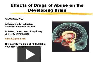 Ppt effects of drugs of abuse on the developing brain powerpoint ppt effects of drugs of abuse on the developing brain powerpoint presentation free to view id 23f012 ywi3m ccuart Image collections