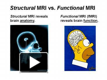 ppt structural mri vs functional mri powerpoint presentation
