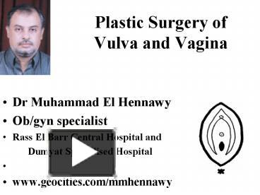 Female vulva operation islam