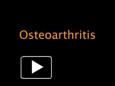 Ppt osteoarthritis powerpoint presentation free to download id ppt osteoarthritis powerpoint presentation free to download id 3af6b3 zdgxz toneelgroepblik Image collections