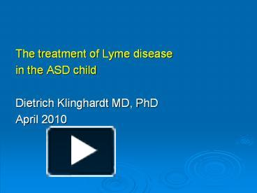 PPT – The treatment of Lyme disease PowerPoint presentation