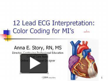 ppt – 12 lead ecg interpretation: color coding for mi's powerpoint  presentation | free to view - id: 3c58de-yjqxz