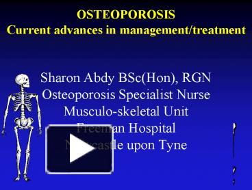 Ppt osteoporosis current advances in managementtreatment ppt osteoporosis current advances in managementtreatment powerpoint presentation free to download id 3faad6 m2uxo toneelgroepblik Gallery