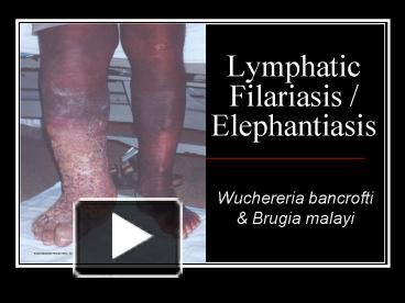 lymphatic system and elephantiasis overview elephantiasis Elephantiasis (ĕl`əfăntī`əsĭs), abnormal enlargement of any part of the body due to obstruction of the lymphatic channels in the area (see lymphatic system lymphatic system,.