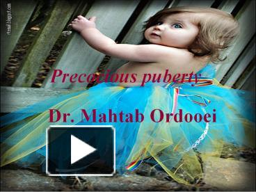 PPT – Precocious puberty PowerPoint presentation | free to