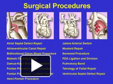 Ppt Surgical Procedures Powerpoint Presentation Free To View Id 465135 Njmwm