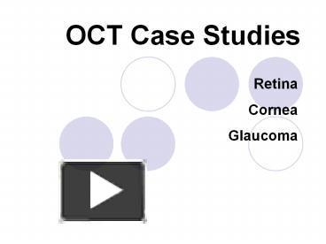 cornea case study