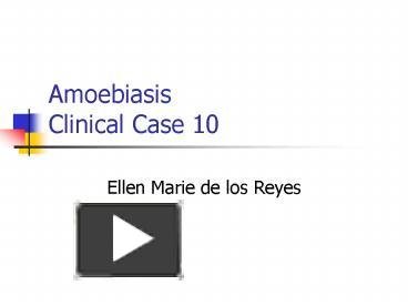 PPT – Amoebiasis Clinical Case 10 PowerPoint presentation | free to
