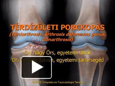 pr térdízület fájdalma injekciók ízületi fájdalmakhoz