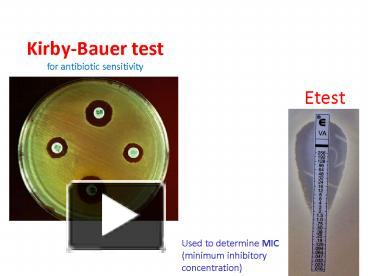 results of kirby bauer test on s epidermidis In the pericatheter skin, the distribution was similar 221% s aureus and 779% cns were isolated, while the most frequent were: 500% s epidermidis, 106% s haemolyctius and 90% s warneri in the 11 cases of peritonitis, the distribution percentage of staphylococcus species was similar to that found in the extra.