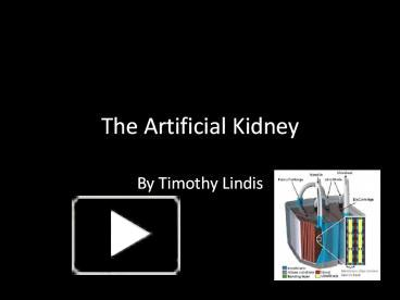 Ppt the artificial kidney powerpoint presentation free to ppt the artificial kidney powerpoint presentation free to download id 5765ce n2q0y toneelgroepblik Images