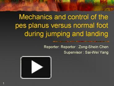 PPT – Mechanics and control of the pes planus versus normal