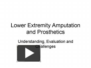 PPT – Lower Extremity Amputation and Prosthetics PowerPoint