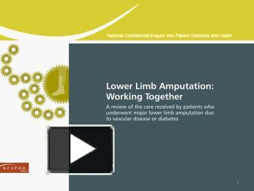PPT – Lower Limb Amputation: Working together? PowerPoint