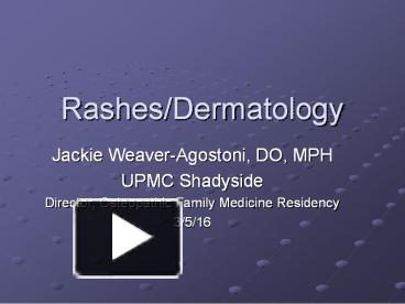PPT – Rashes/Dermatology PowerPoint presentation | free to download