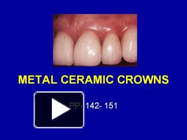 PPT – METAL CERAMIC CROWNS PowerPoint presentation | free to