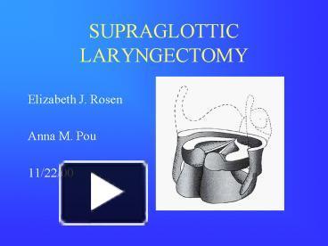 PPT – SUPRAGLOTTIC LARYNGECTOMY PowerPoint presentation ...