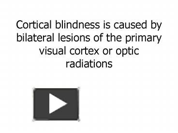PPT – Cortical blindness is caused by bilateral lesions of