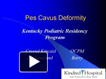 PPT – Pes Cavus Deformity PowerPoint presentation | free to view
