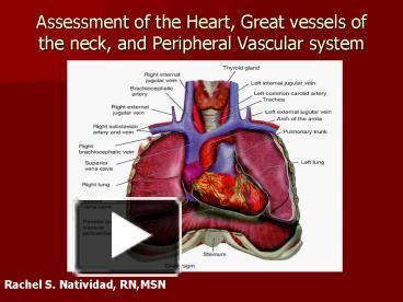 heart and blood vessel assessment Providing global leadership in research, training, and education to prevent and treat heart, lung, blood and sleep disorders.
