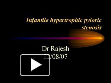Ppt Infantile Hypertrophic Pyloric Stenosis Powerpoint