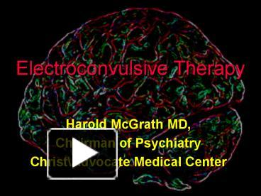 ppt � electroconvulsive therapy powerpoint presentation